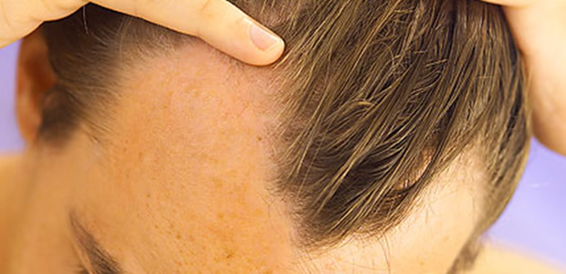 5 ways to deal with male pattern baldness
