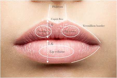 HOW TO ACHIEVE THE PERFECT LIPS WITH FILLERS – Ready Set Beauty