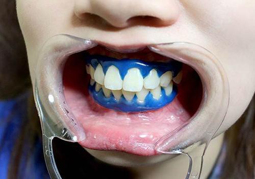 The Black & White of Teeth Whitening