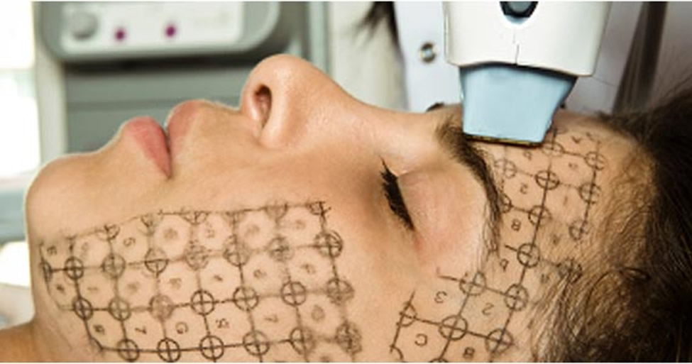 Is Ulthera or Thermage a Better Treatment to Have? – Ready Set Beauty