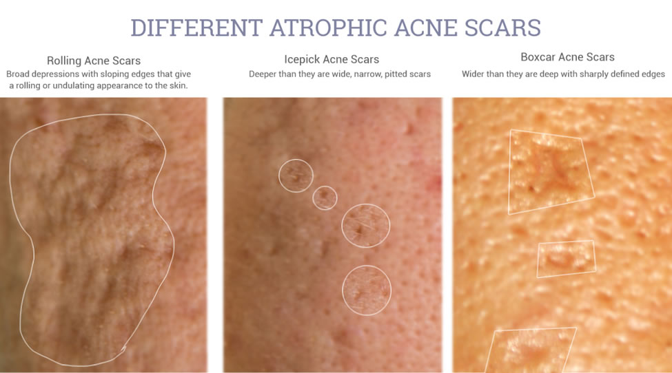 Best acne scar removal creams [Clinically tested and ...  |Acne Scar Types