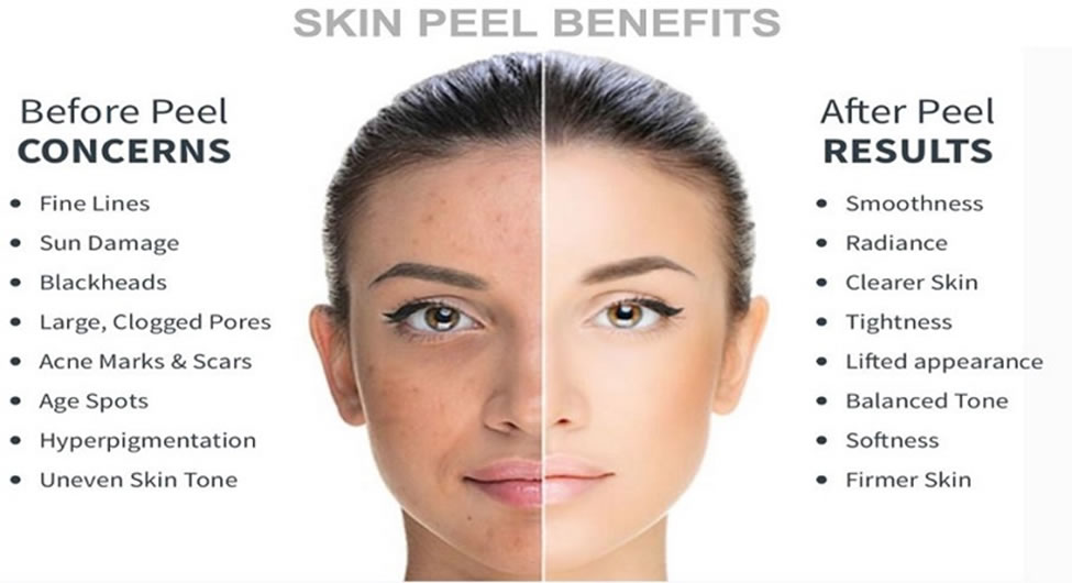 The Do's and Don'ts of Chemical Peels you Ought to Know ...