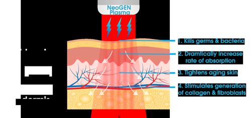 31172329-neogen-diagram5B15D