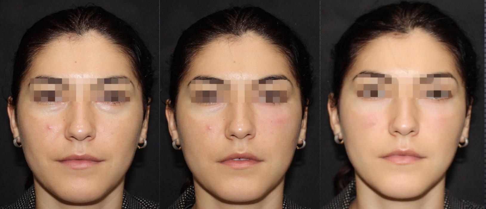 eye revival program SW1 clinic