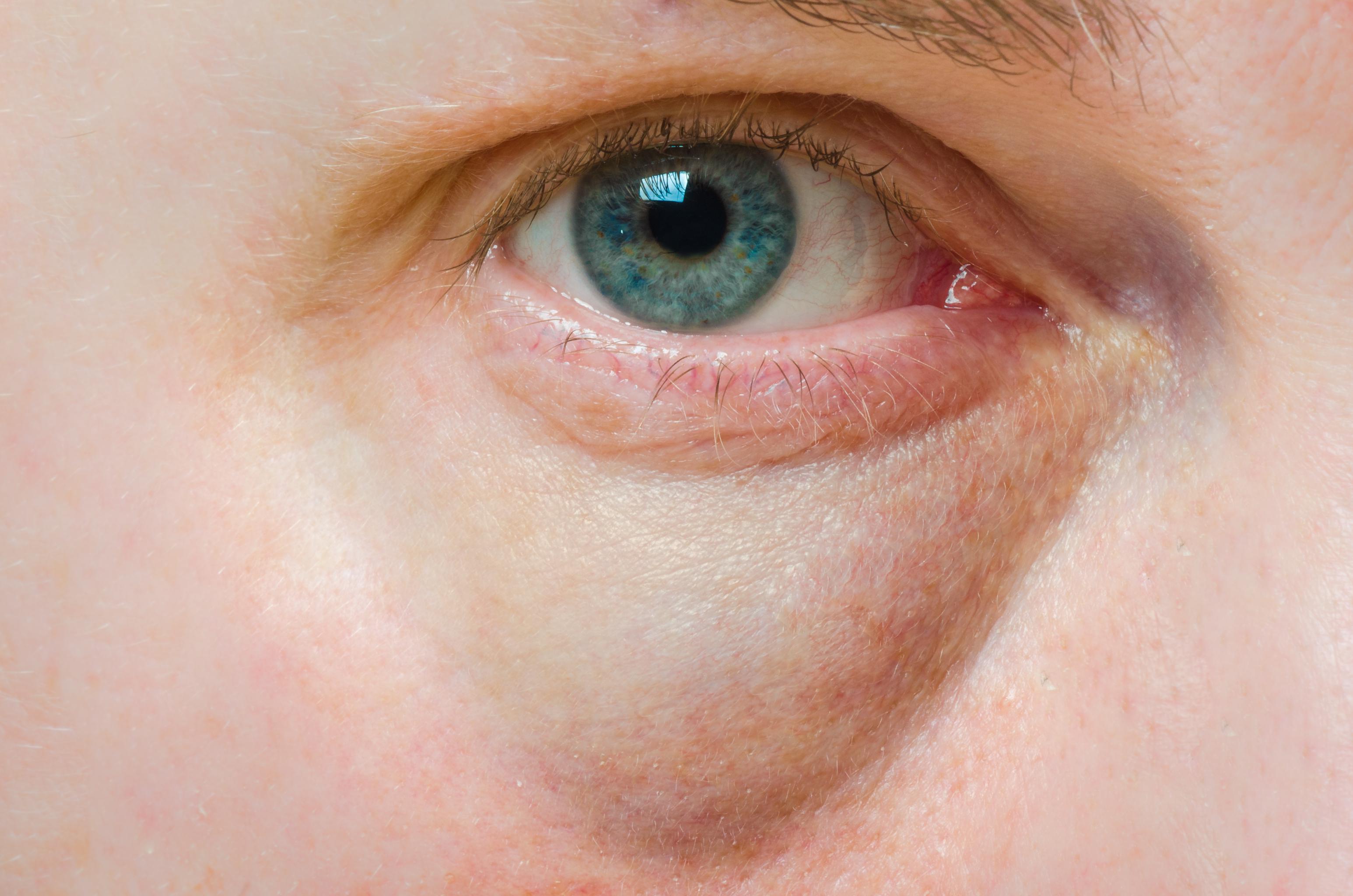 Puffy Swollen Eye