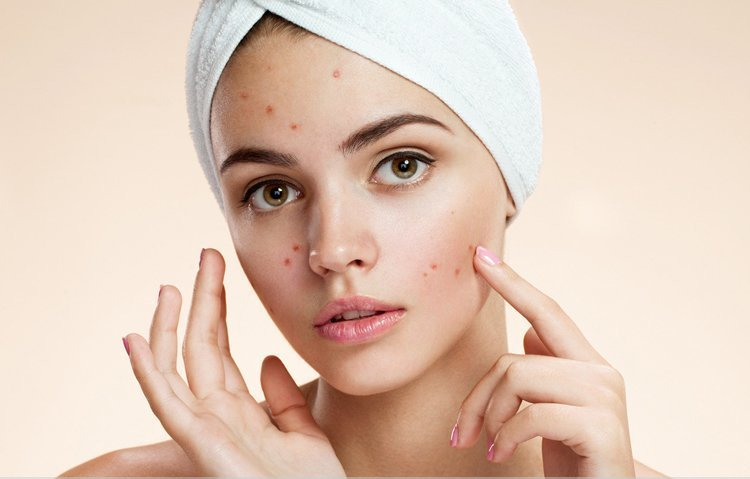pimple-treatment-for-oily-skin.jpg