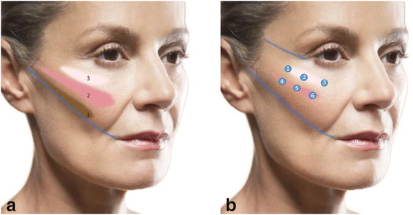 cheek lift with fillers
